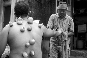 Cure Cupping